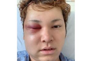 手術から3日後の間瀬翔太の顔画像