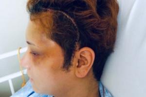 手術後の間瀬翔太の手術痕