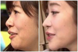 指原莉乃の昔の画像と現在の画像を比較:鼻の高さが違う