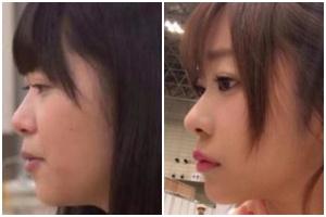 指原莉乃の昔の画像と現在の画像を比較:鼻の高さ・形が違う