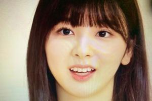 韓国合宿(最終オーディション)の時のミイヒ(鈴野未光)の歯並び:歯列矯後