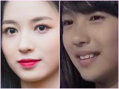 ジウォン 整形 ガルプラ 顎 目